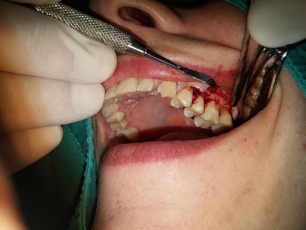Parodontalna hirurgija