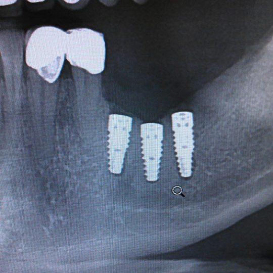 Postavljanje implantata 1
