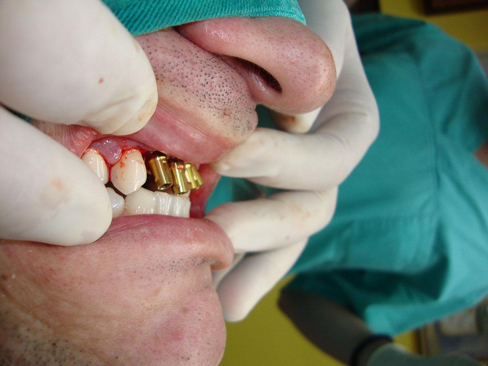 Postavljanje implantata 2