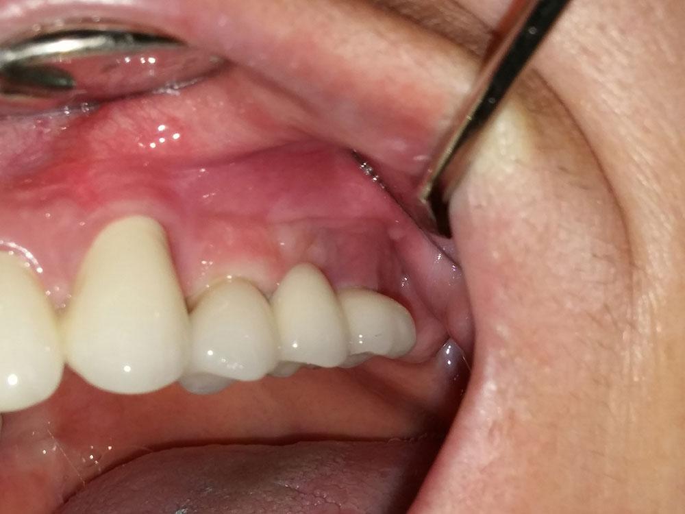 Keramika na implantima 1
