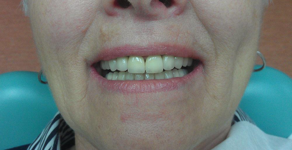 Keramika na implantima 3